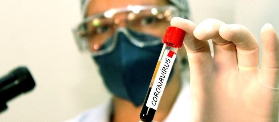 Coronavírus: confira os dados do boletim desta segunda-feira (28) em Maringá