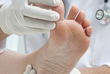 Diabetes provocou 162 amputações em cinco anos