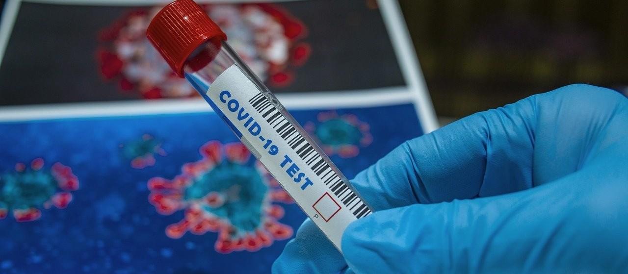Coronavírus: veja os dados do boletim desta terça-feira (26), em Maringá
