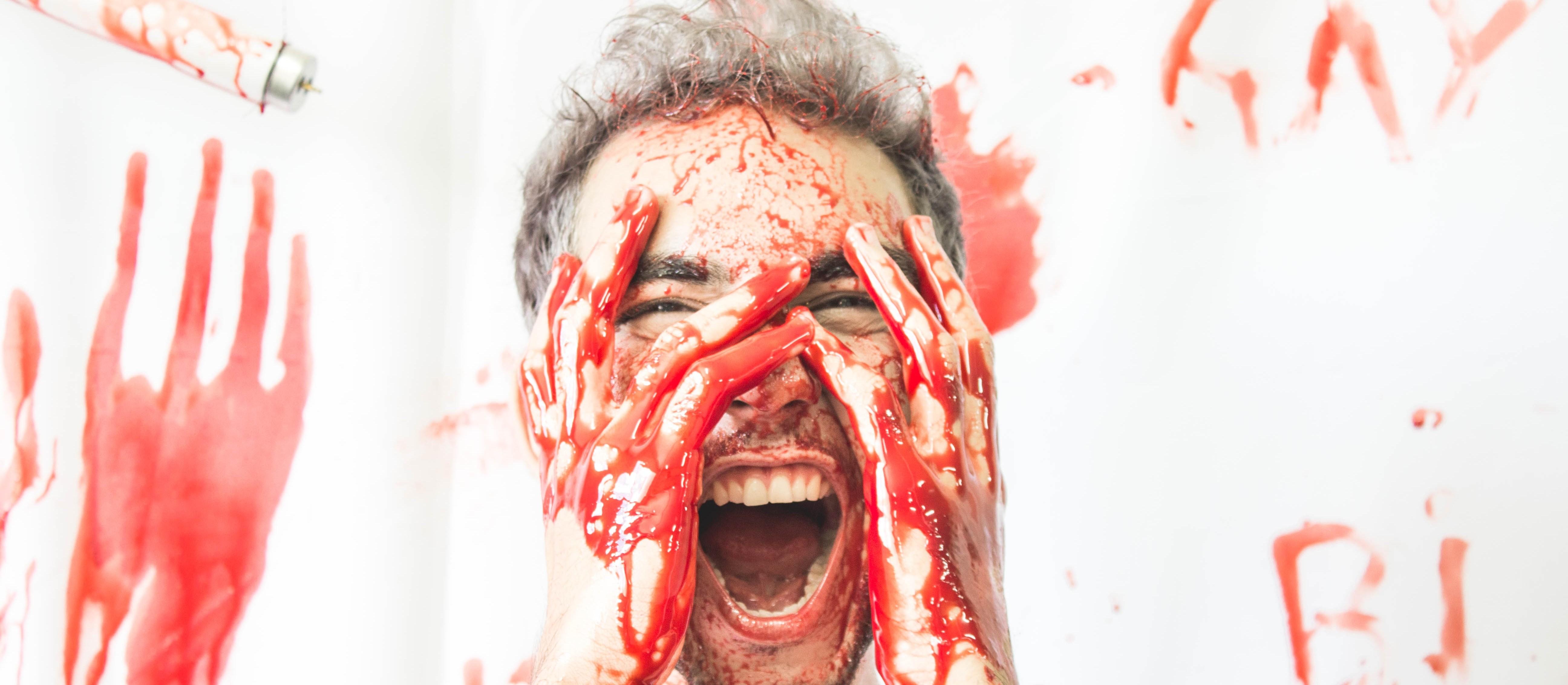Fotos mostram violência contra população LGBTQI+