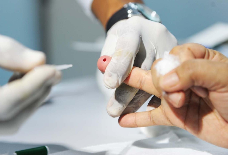Saúde ofertará testes rápidos de HIV, sífilis e hepatites virais