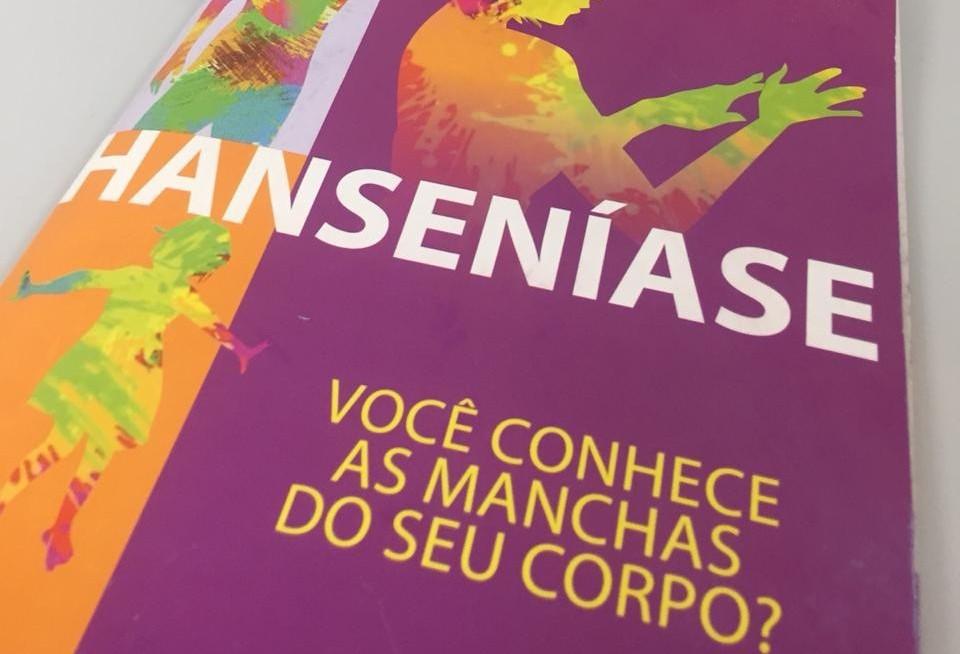 Regional de Saúde de Maringá registra 40 casos de hanseníase por ano